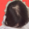 【画像】まだ十代の女なのに頭頂部がハゲたったwwwww